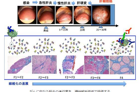 肝炎の進行度を血液で検査 肝細胞にある糖鎖を手掛かりに肝硬変や肝臓がんに進行するリスクを判断|産総研・名古屋市立大など