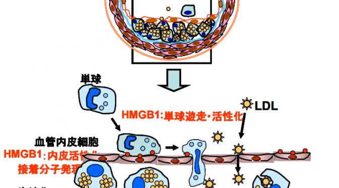 アテローム性動脈硬化症の新治療法=血管炎症抑える抗HMGB1抗体で|岡山大など