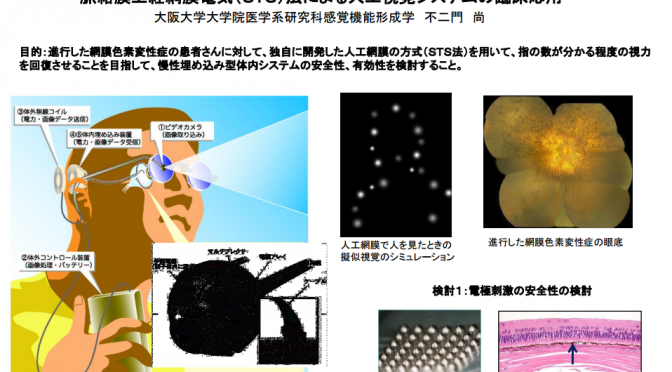 脈絡膜上経網膜電気(STS)法による人工視覚システムの臨床応用