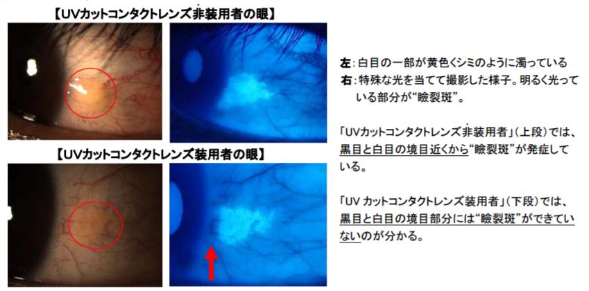 UVカットコンタクトレンズ非装用者・装用者の眼。UVカットコンタクトレンズ非装用者では黒目と白めの境目近くから瞼裂斑が発症している。UVカットコンタクトレンズ装用者では、黒目と白目の境目部分には瞼裂斑ができていないのがわかる。