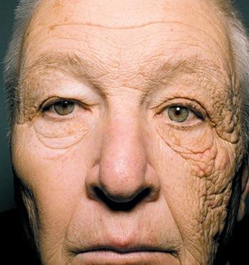 肌の紫外線ケアの重要性が分かる画像 トラック運転手を28年務めた男性は日光によって顔の半分だけ老化がスゴい!