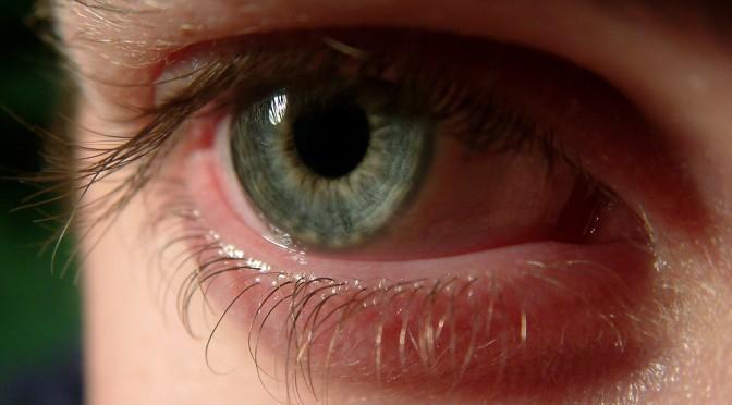 目の病気(若年性白内障・ドライアイ・老眼・まばたき不全・飛蚊症・加齢黄斑変性)・オサートで視力回復|駆け込みドクター 2月22日