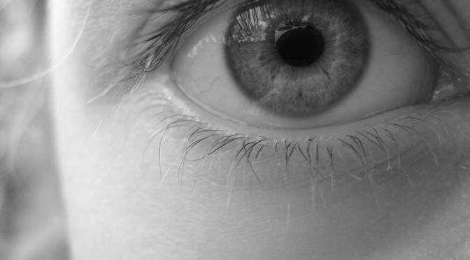 ピスタチオの「白目ネタ」を眼科医が心配|結膜弛緩症になる可能性