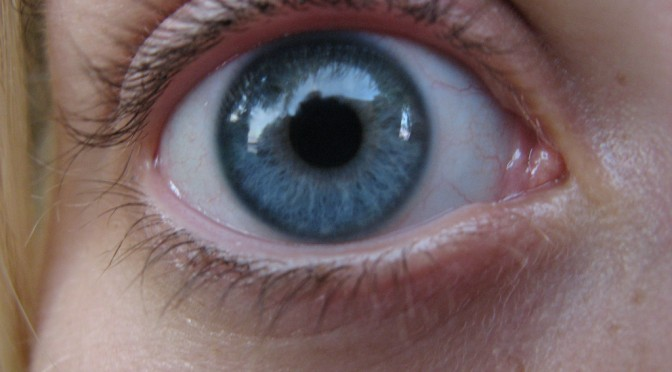 カラコン10製品で色素露出、角膜とまぶたに