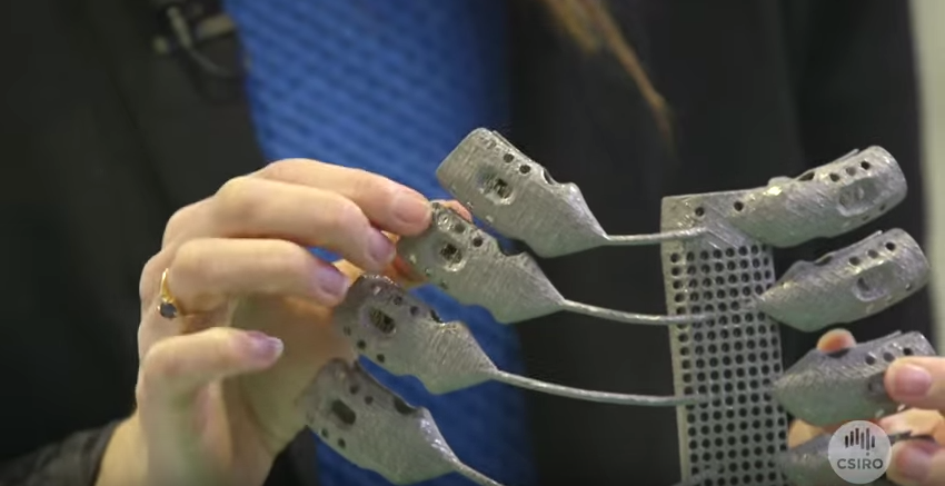 世界初3Dプリントのチタン胸郭移植に成功|人間はサイボーグ化するか?