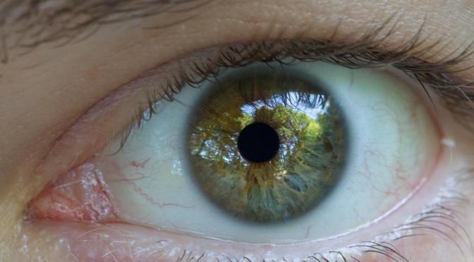 日本人には正常眼圧緑内障(NTG)が多い!?