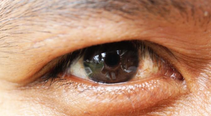 #西島秀俊 さん、映画の撮影で角膜がはがれる|角膜はそんな簡単にはがれるの?