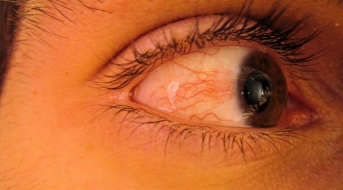 なぜ白目が赤く充血するのか?眼が充血する理由とは?