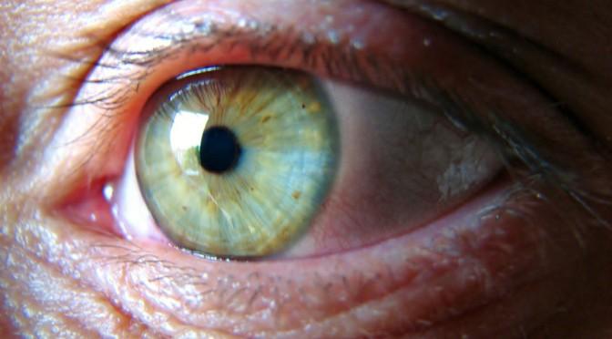 なぜ白内障になると、光が眩しいという症状が現れるのか?