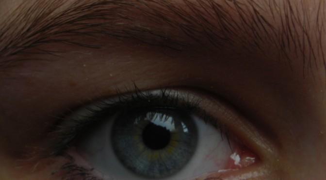西城秀樹さんが、右は網膜症、左は白内障のため、両目手術