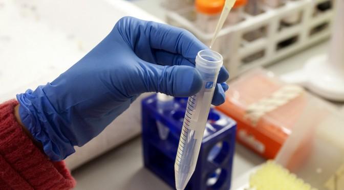 エゴマに含まれる「ルテオリン」に脂肪肝・NASH・肝がん予防効果!|名古屋市大【論文・エビデンス】