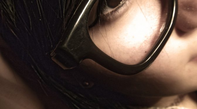 強度近視は第2位の失明原因|強度近視で起こりやすい4つの病気