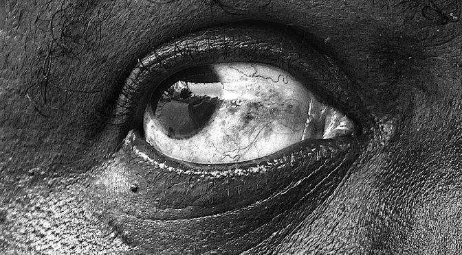 目の中をミジンコみたいなモノが泳ぐ目の病気とはどんな病気?