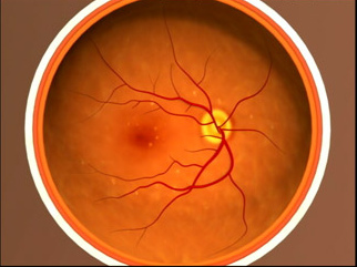 加齢黄斑変性症を目の病気として正しく認識しているのは約2割しかいない