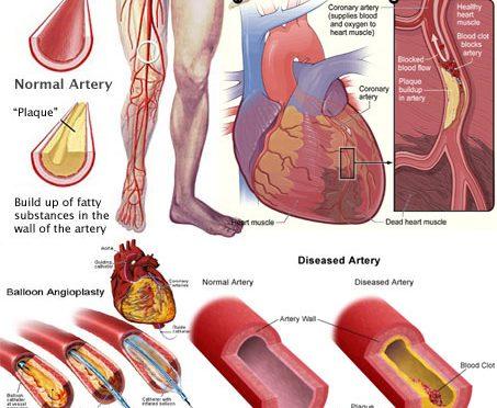 2型糖尿病で動脈硬化が進行した患者は低血糖でも高い脳卒中・心筋梗塞の危険性が高まる|神戸の医師らが調査