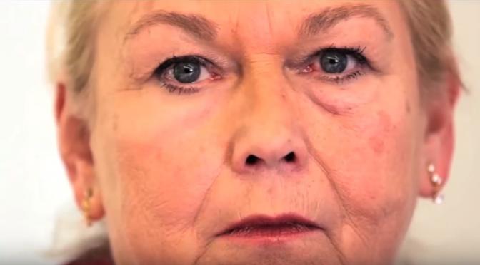 目の下のシワやたるみを消す「第二の皮膚」を形成する素材を発明|MIT