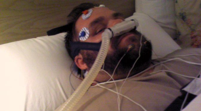 睡眠時無呼吸症候群の患者は正常眼圧緑内障のリスクが高い!SAS対策のやり方!