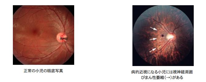 病的近視になる小児には視神経周囲びまん性萎縮がある|近視の子供が将来「病的近視」により失明するリスクを眼底検査で早期発見|東京医科歯科大