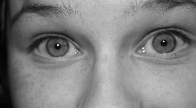 失明の恐れもあるベーチェット病、発症は遺伝子変異
