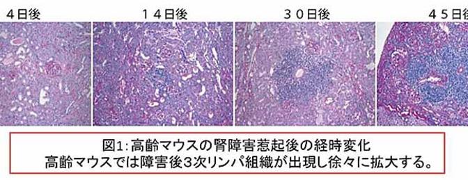 高齢マウスの腎障害惹起後の経時変化|高齢マウスでは障害後3次リンパ組織が出現し徐々に拡大する。