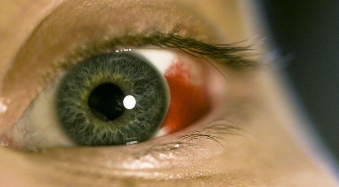 充血(目の充血)と出血(結膜下...