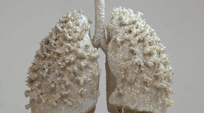 日本人に多い「肺腺がん」のかかりやすさを決める遺伝子領域を発見|国立がん研究センターなど
