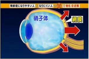 飛蚊症になりやすくなる原因は「老化」と「近視」!|この差って何ですか