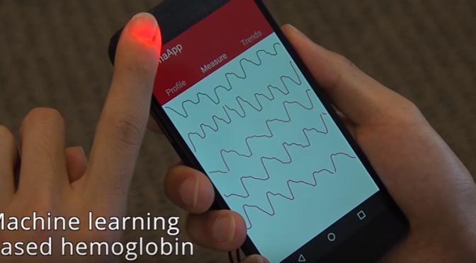 「HemaApp」|採血なしでスマホで手軽に貧血チェックができるアプリを開発|ワシントン大学