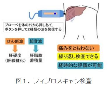 フィブロスキャン検査の特徴は痛みを伴わない、繰り返し検査できる、経時的な評価が可能である点。フィブロスキャンはプロ―ベ体の外から押し当て、ボタンを押して2種類の波(せん断波・超音波)を発信する。せん断は肝硬度(肝線維化)、超音波は肝脂肪蓄積量の測定に使われる。