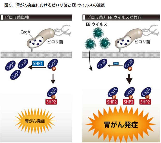 胃がん発症におけるピロリ菌とEBウイルスの連携