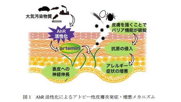 大気汚染物質がアトピー性皮膚炎のかゆみの症状を引き起こすメカニズムを解明|東北大