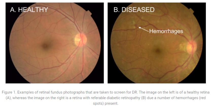 糖尿病網膜症を網膜写真から見つけるディープラーニング用アルゴリズムを開発|GOOGLE