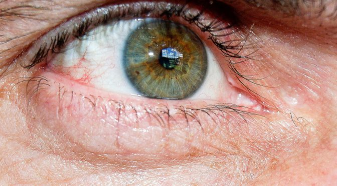 目とアンチエイジング|老化の始まりは目から