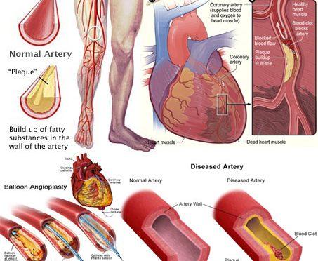 動脈硬化、腹囲との関連少ない|高血圧や高血糖、高脂血症と動脈硬化の相関は強い