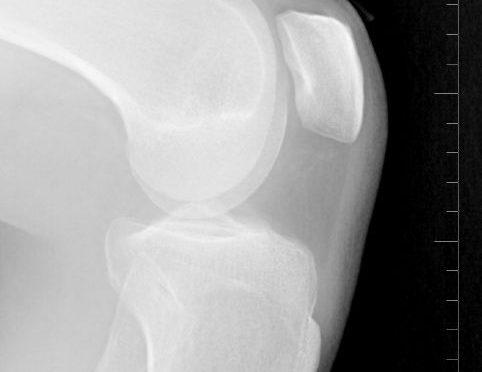 ひざ軟骨の自然再生に成功=スポーツ治療に光|北大グループ