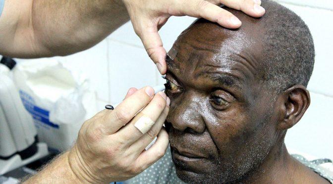 徐々に薬剤がしみ出る埋め込み型デバイスによる網膜色素変性症の治療の開発に期待|東北大