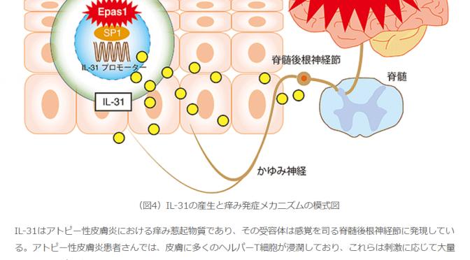 アトピー性皮膚炎のかゆみを引き起こす物質「インターロイキン31(IL-31)」の産生に、「EPAS1」が重要な役割を果たしていることを発見|九大