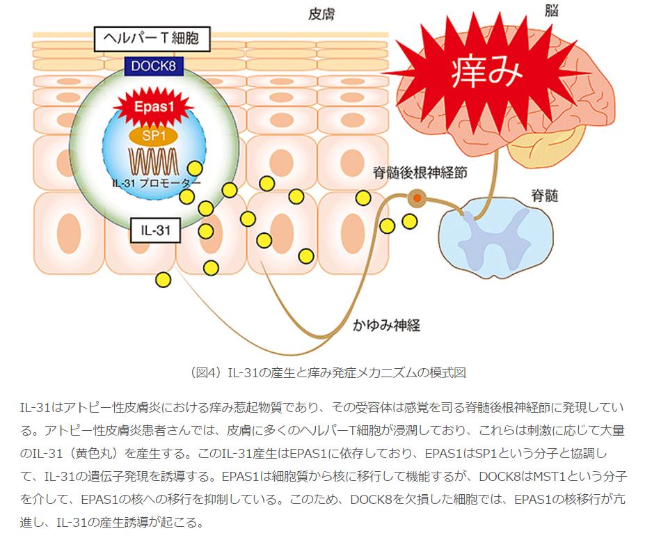 IL-31の産生と痒み発症メカニズムの模式図