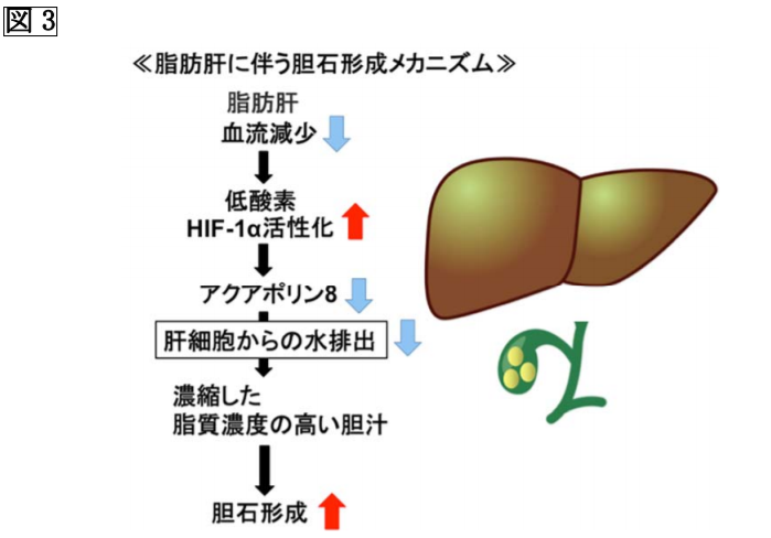 脂肪肝に伴う胆石形成メカニズム