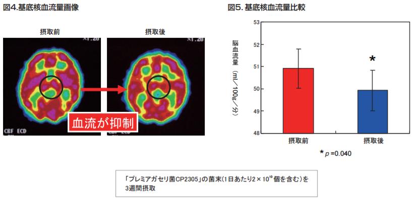 基底核血流量画像|基底核血流量比較|「プレミアガセリ菌CP2305」菌末を3週間摂取