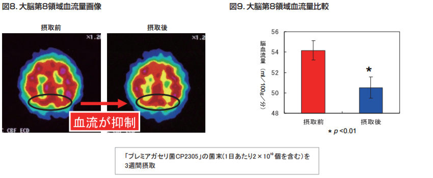 大脳第8領域血流量画像|大脳第8領域血流量比較|「プレミアガセリ菌CP2305」の菌末を3週間摂取