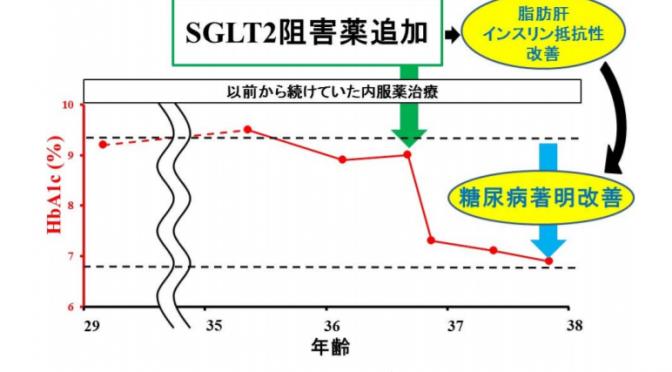 SGLT2阻害薬により脂肪萎縮性糖尿病に治療に成功|脂肪肝が減少し、糖尿病、インスリン抵抗性が改善|東北大