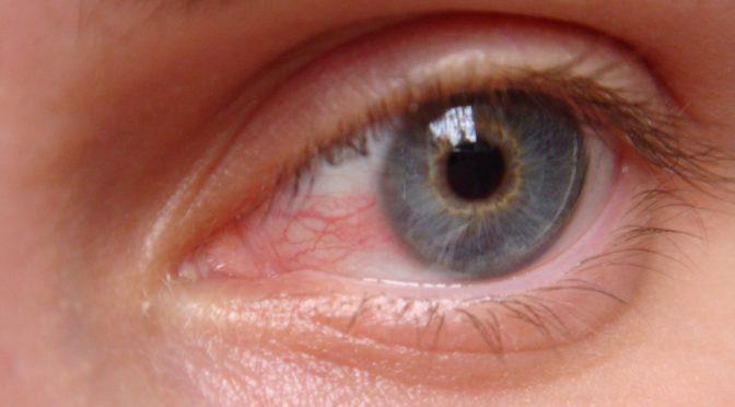 なぜドライアイになると目が充血するという症状が現れるのか?