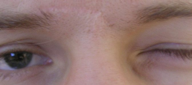 花粉症の症状である「目のかゆみ」による目のこすり過ぎで「茶クマ(目の下のクマ)」ができないように気をつけよう!