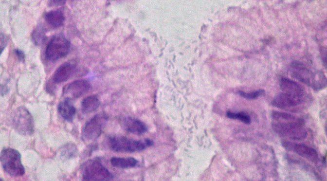 早期胃がん患者に内視鏡治療を行い、ピロリ菌除菌後でも、遺伝子のメチル化異常の程度が高いほど再発リスク高い|国立がん研究センター