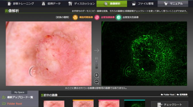 デジカメ技術と機械学習で悪性黒色腫(メラノーマ)等を見分ける皮膚がん診断支援システム開発|#カシオ