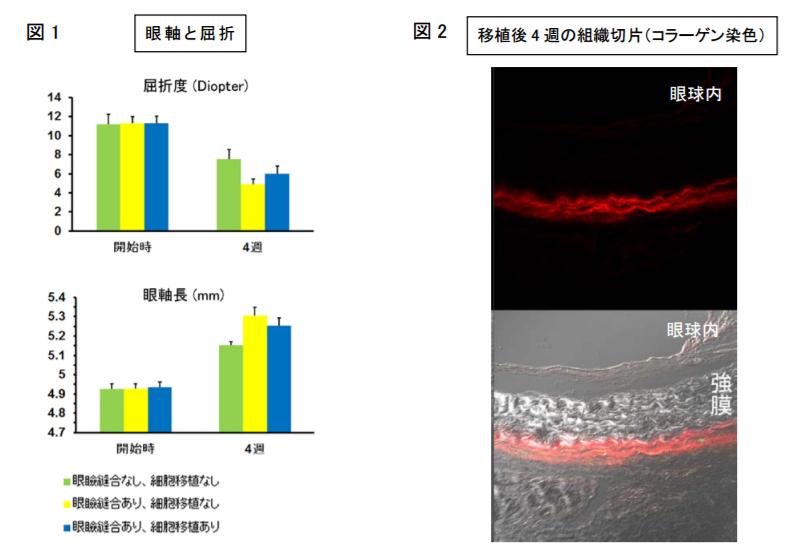 「皮膚から採取可能な線維芽細胞の眼球壁への移植により、近視進行を抑える」― ラット近視モデルに対するヒト線維芽細胞移植による近視進行抑制効果―
