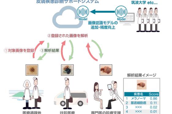 AIを活用した画像認識による皮膚疾患診断サポートシステムの実用化を目指し共同研究を開始|京セラコミュニケーションシステム・筑波大学