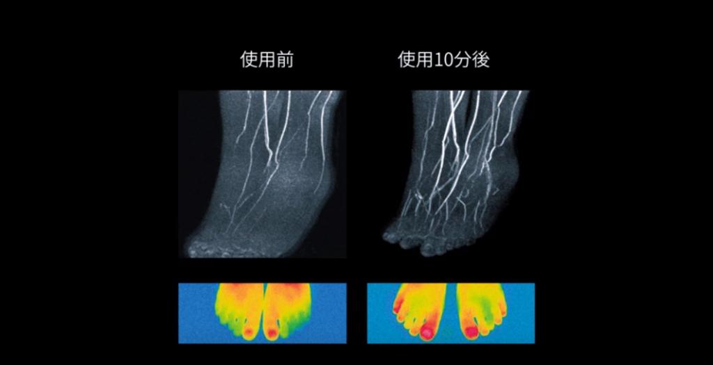 東海大学の高原太郎教授によれば、「MRIを用いた血管撮影(MRA)」と「サーモグラフィ」で見てみると、ホバーを10分間使うことで指先まで温かくなっていることが確認できた