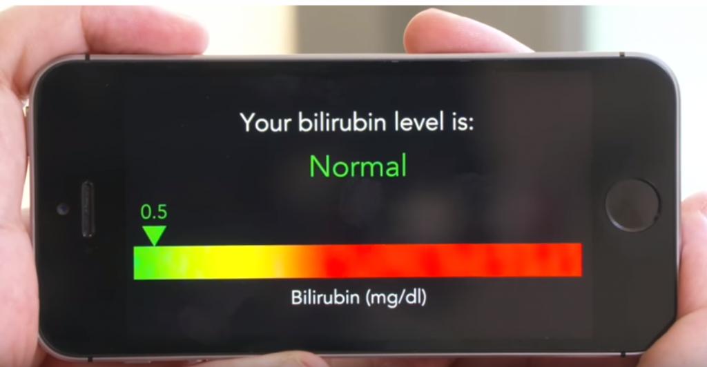 「BiliScreen」|スマホカメラの自撮りで膵臓がんを簡単にスクリーニングできるアプリ|膵臓がんのサイン「黄疸」の原因となる「ビリルビン値」を測定|ワシントン大学